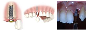 centar-za-zubnu-implantologiju-implanti_1