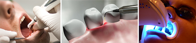 centar-za-zubnu-implantologiju-laser_1