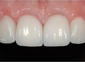 centar-za-zubnu-implantologiju-laser_2