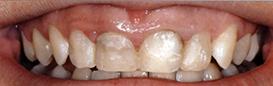 centar-za-zubnu-implantologiju-estetska-stomatologija-1