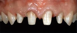 centar-za-zubnu-implantologiju-estetska-stomatologija-2