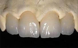 centar-za-zubnu-implantologiju-estetska-stomatologija-3