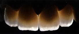 centar-za-zubnu-implantologiju-estetska-stomatologija-4