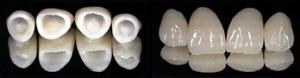 centar-za-zubnu-implantologiju-estetska-stomatologija-5-300x78