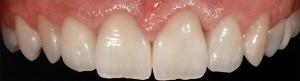 centar-za-zubnu-implantologiju-estetska-stomatologija-6-300x81