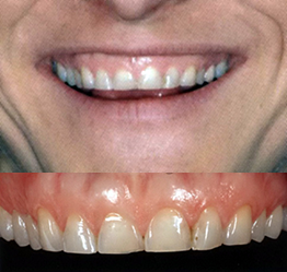 centar-za-zubnu-implantologiju-fasete_1