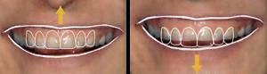 centar-za-zubnu-implantologiju-fasete_2-300x83
