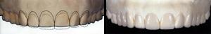 centar-za-zubnu-implantologiju-fasete_3-300x49