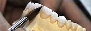 centar-za-zubnu-implantologiju-fasete_4-300x105