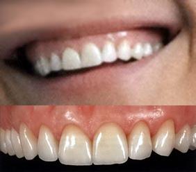 centar-za-zubnu-implantologiju-fasete_6
