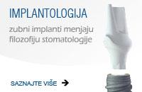 centar-za-zubnu-implantologiju-banner_implanti